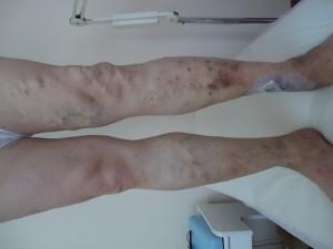 Bacak Varisleri