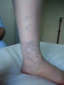 Bilek ve bacak varisi