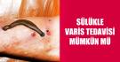 sulukle-varis-tedavisi