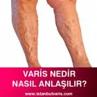 Varis