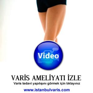 Varis Ameliyatı izle 300x300 Ameliyat Videoları İzle