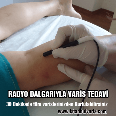 Radyo Dalgalarıyla Varis Tedavi