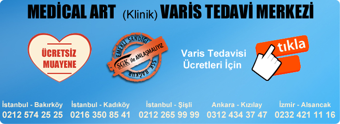 varis-tedavi-fiyatlari-2015.png